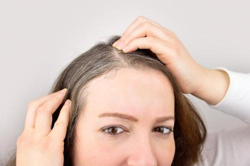 Potato Peels Can Potentially Prevent Gray Hair - Here's How