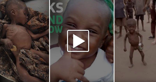 An Abandoned Boy In Nigeria Accused Of Being A Witch Was Found Starving By An Aid Worker A Year Ago. See How He Looks Today!