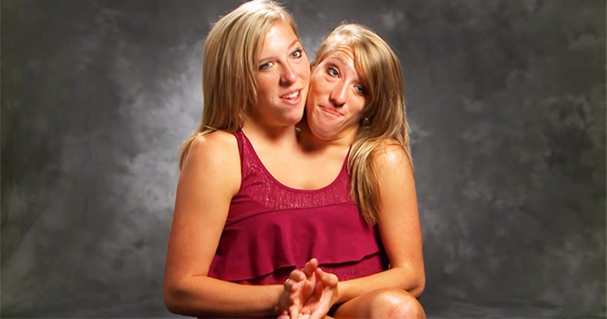 Die siamesischen Zwillinge Abby und Britt treten ihren
