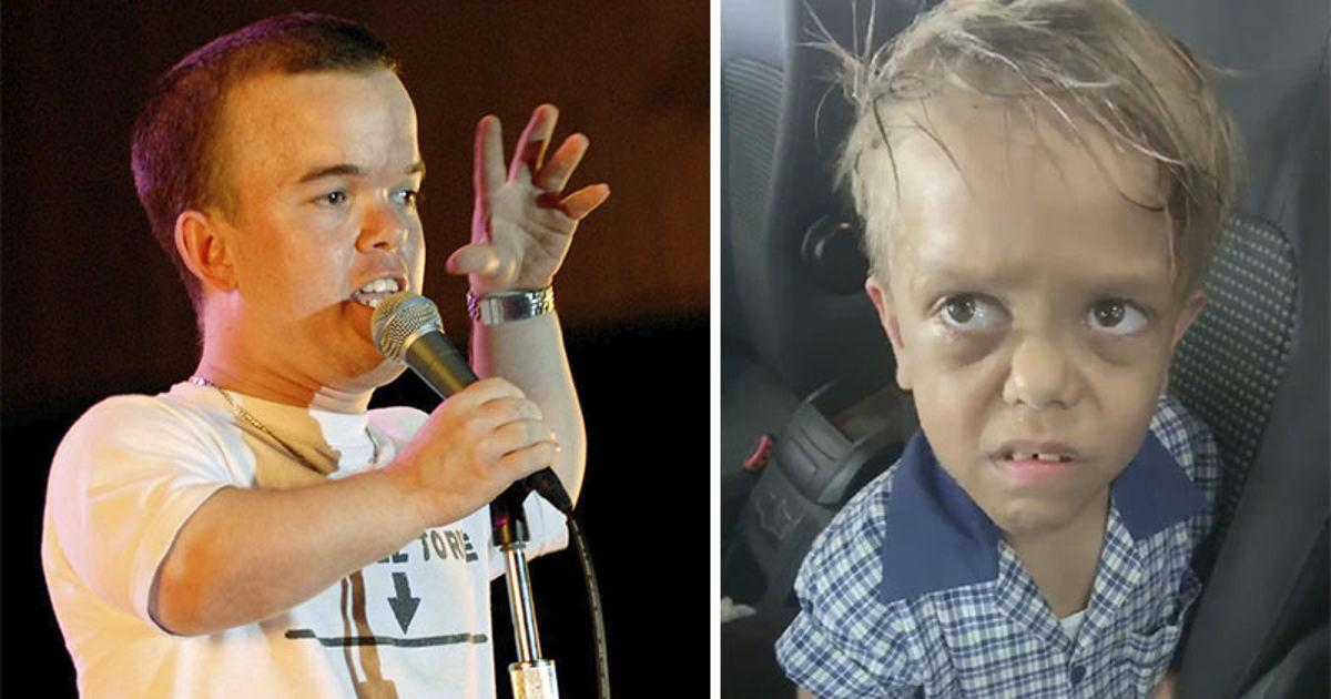 Comedian Brad Williams Who Has Dwarfism Raises Over $200,000 To Send 9-Year-Old Bullied Kid To Disney Land