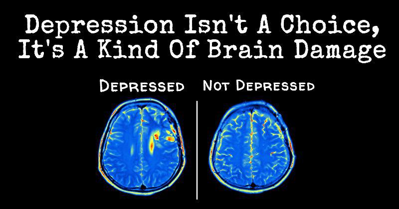 New Research Shows Depression Causes Brain Damage, Not The ...